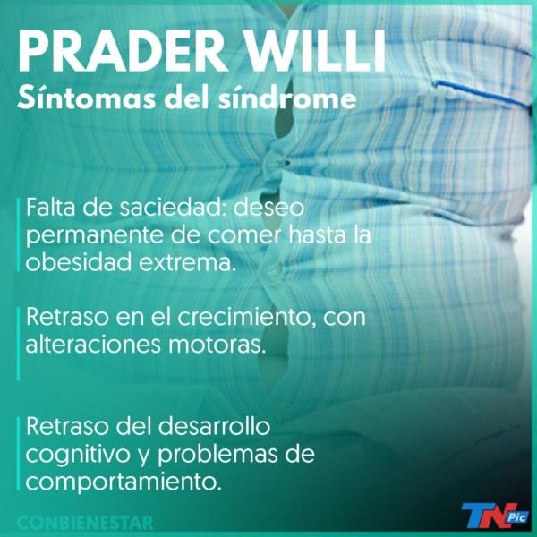 Síndrome de Prader Willi